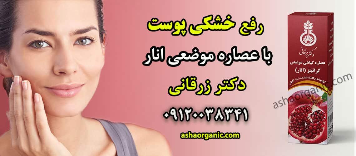 اعصار موضعی انار دکتر زرقانی