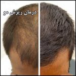 درمان طبیعی ریزش مو در خانه