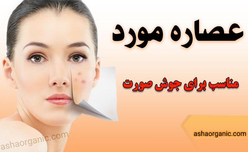 خرید عصاره موضعی مورد دکتر زرقانی