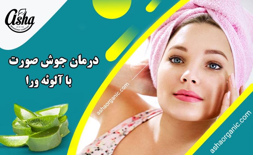 درمان سریع جوش صورت در خانه